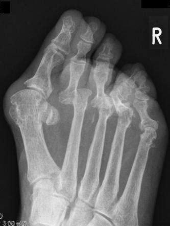 Rheumatoid arthritis of the forefoot | Image | Radiopaedia.org