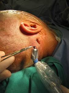 Case Example Sentinel Lymph Node Biopsy