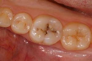 case  white fillings  hill dental group