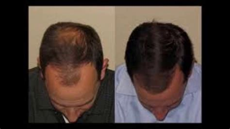 How Fast Will Your Hair Grow Using Castor Oil Before And