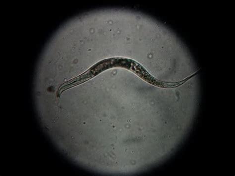 worm  tap water  microscope youtube