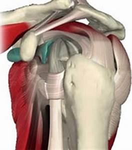 Как определить болит сустав или связки плеча
