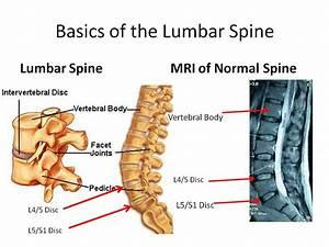 Understanding Your Lumbar Spine Mri