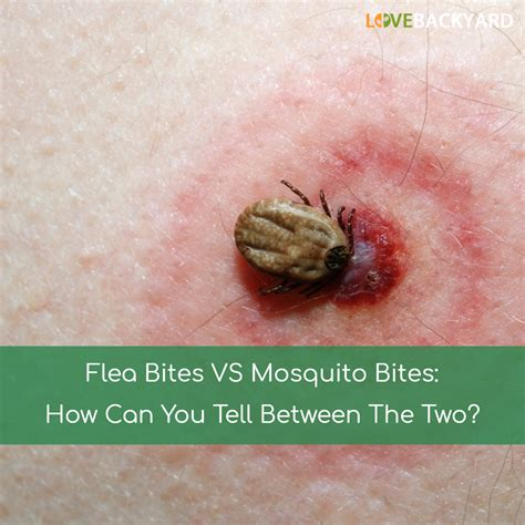 Flea Bites Images Mosquito Bites Vs Flea Bites Www Pixshark Images