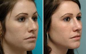Rhinoplasty Before  U0026 After Photos