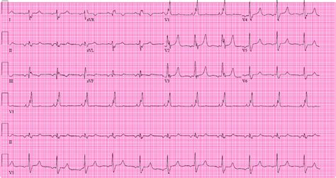 ecg   month  bundle branch block  myocardial