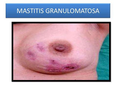 mastitis tuberculosa