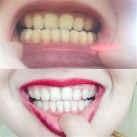 Best 25 White Teeth Ideas On Pinterest Baking Soda Whitening Teeth