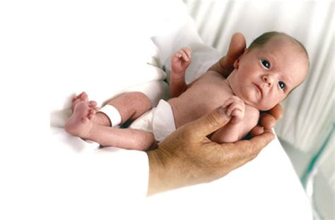 fotos de bebes recien nacidos con sindrome de imagenes