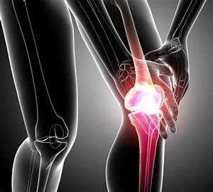 Народные средства лечения артроза коленного сустава 2 степени