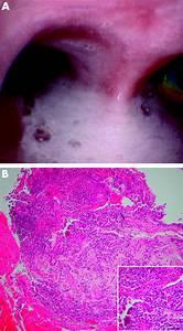 Bronchorrhoea Complicating Inflammatory Bowel Disease