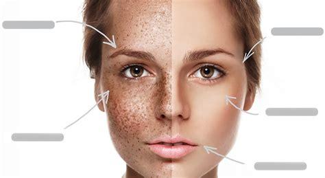 pigmentation    wrinkle laser skin clinic