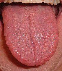 Tongue Discoloration (White, Red, Purple, Blue, Yellow ...