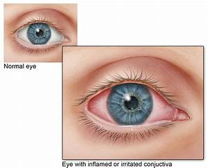 Conjunctivitis Pink Eye Signs And Symptoms Cdc