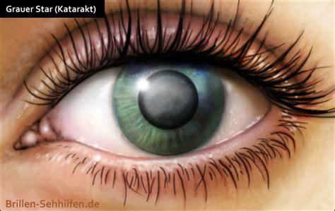 Grauer Star (Katarakt) Linsentrübung  Ursachen, Symptome