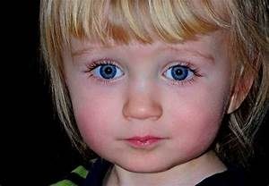 Повышенное внутричерепное давление у детей до года лечение