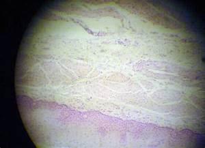 Aorta Histology