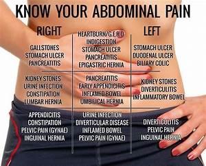abdominal hernia symptoms - Google Search | HS Graphics ...