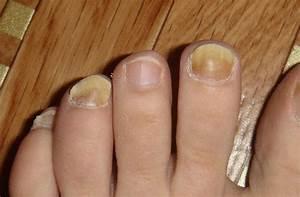 Масло стоп актив против грибков ногтей цена отзывы где купить
