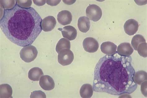 187 monocytes