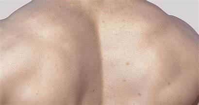 Male Mesh Base Scan Female Skin Ultimate