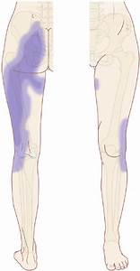 Typical Pain Referral Pattern Of Sacroiliac Joint Pain