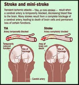 Mini-Strokes May Lead to PTSD, Study Finds Stroke