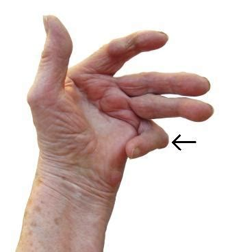 Rheumatoid Arthritis Hand. How To Tether Android To Laptop. Dental Scaling And Root Planing. Business Administration Online Degrees. Inpatient Drug Rehab California. Social Security Medicare Supplemental Insurance. How To Kill Rats In House Document Share Site. Lpn To Rn Bridge Programs In Pa. House Cleaning Services Queens Ny
