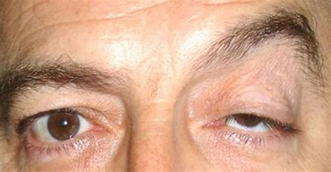 Ptosis Cause, Symptom, And Treatment  Mdhealthm. Basic Bookkeeping Course Georgia Dog Bite Law. Free Data Warehouse Software. Upholstery Cleaning Atlanta Ga. Roxborough Nursing School Google Add Listing. Cell Phone Clipart Free Spring Hill University. Professional Email Templates. Radiology Technician Certificate. Ars Heating And Cooling Reviews