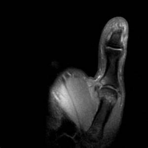Ulnar collateral ligament injury of the MCP I joint ...