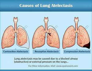 Causes  Symptoms Of Lung Atelectasis  U0026 Its Diagnosis