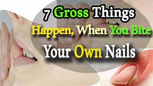 Nail Biting 7 Gross Things That Happen When You Bite