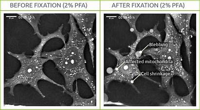 Fixation Pfa Cell Test Nanolive Imaging Effects