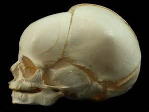 Diagram Of The Fetal Skull