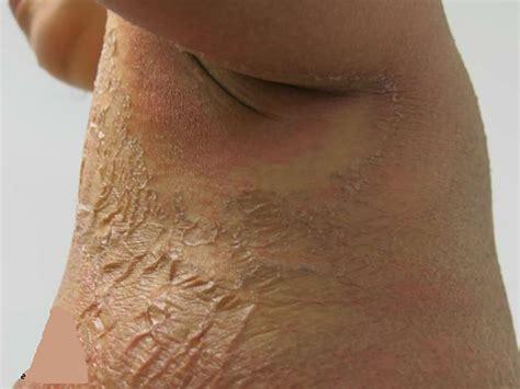 Armpit Rash Itchy Candida Causes Treatment
