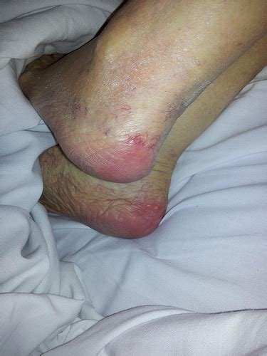 early signs of bed pressure sores on mums heels 26 11 2011 flickr photo