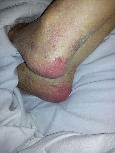 Bed Pressure Sores On Heels