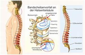 symptome bandscheibenvorfall hws c5 c6