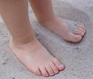 Чем лечить грибок стопы на ногах в запущенной стадии