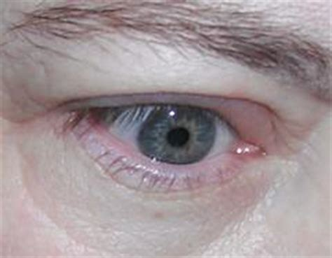 Herpes In The Eye Images Herpes Eye Infection General Center Steadyhealth