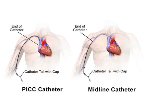 chambre implantable has picc line vs midline catheter nursing clinical skills