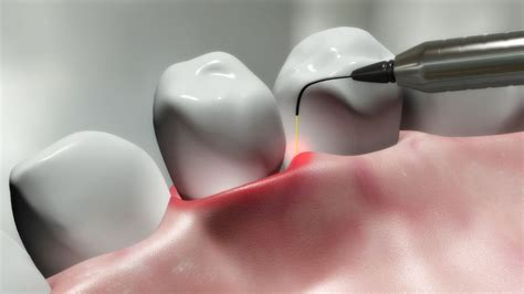 Laser Treatment For Gum Disease  Dental Wellness Group. Software Companies In Coimbatore. University Of Arizona Degree Programs. Equipment Lease Financing Four Types Of Bones. Google Adsense Video Ads Sewer Drain Cleaners. Network Security Components Mysql Admin User. Tourism Management Degree Cost To Move House. Earn Accounting Degree Online. Air Conditioning Repair Raleigh Nc