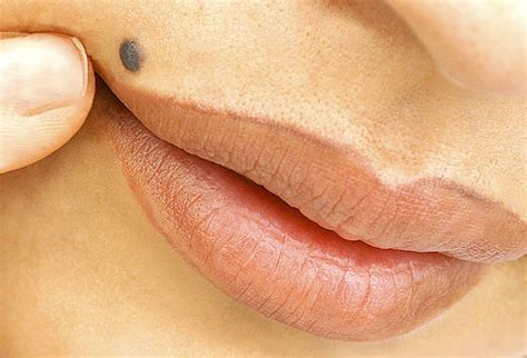 permanent breast forms advanced cosmetic procedures removal of moles warts
