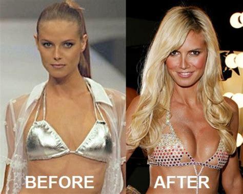 Heidi Klum Before And After Boob Job