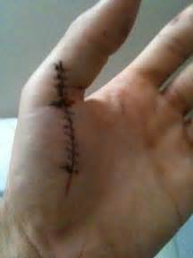 The Cut with Stitches On Hand