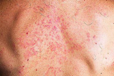 pilzerkrankungen natuerlich behandeln heilpraxis