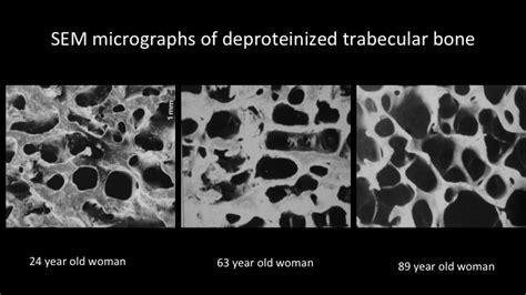 osteoporosis  dental implants