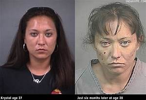33 Best images about before and after METH on Pinterest ...