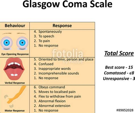 glasgow coma scale illustration stock image  royalty  vector files  fotoliacom pic