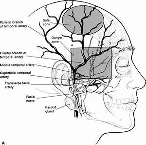 Temporal Artery Biopsy